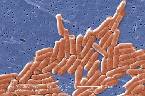 Salmonella is the most common cause of food poisioning